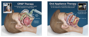 CPAP therapy versus oral appliance diagram
