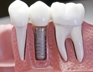 model of dental implant surrounded by two natural teeth
