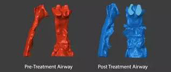 model comparing an airway before and after treatment
