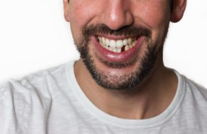 adult male with a missing tooth smiling